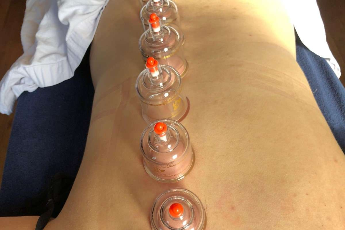 Cupping Therapy Massage Pampered Soul Darlington